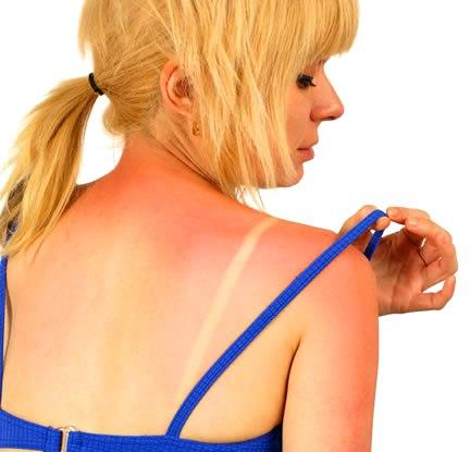 Что делать, если кожа обгорела на солнце